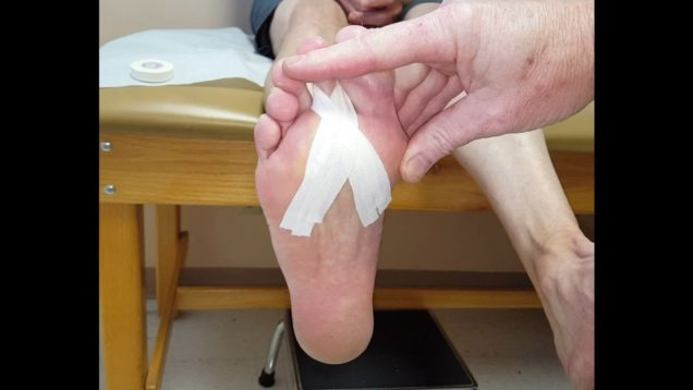 Strapping for Plantar Plate Tear